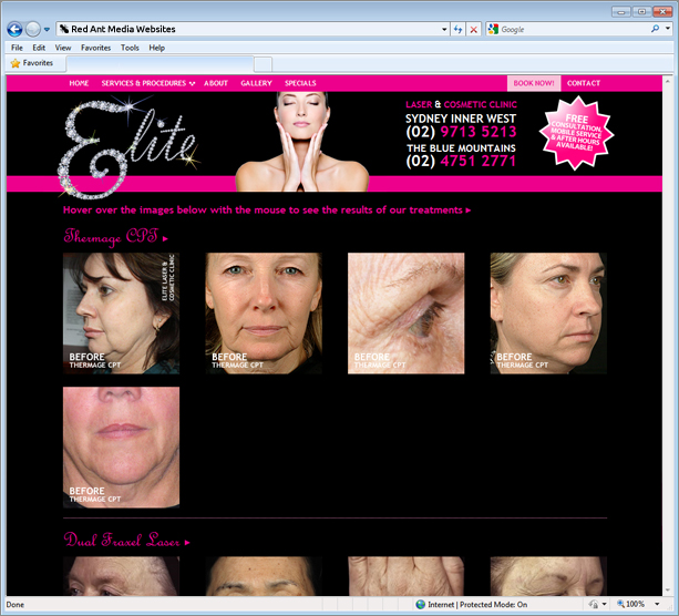 Website Design for Elite Laser and Cosmetic Clinic Gallery Page