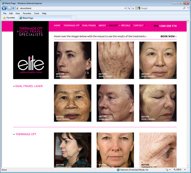 Elite Laser and Cosmetic Clinic Website Design